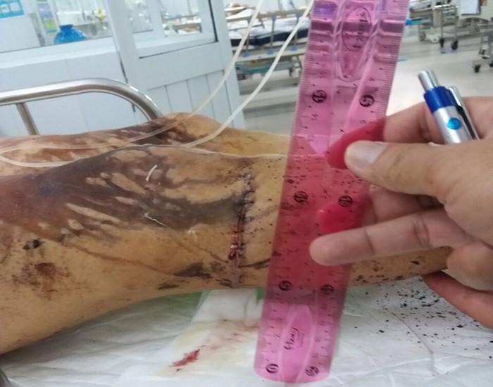 Xuất hiện nhiều dấu hiệu bất thường trong vụ Việt kiều bị tạt axit, cắt gân chân - Ảnh 1