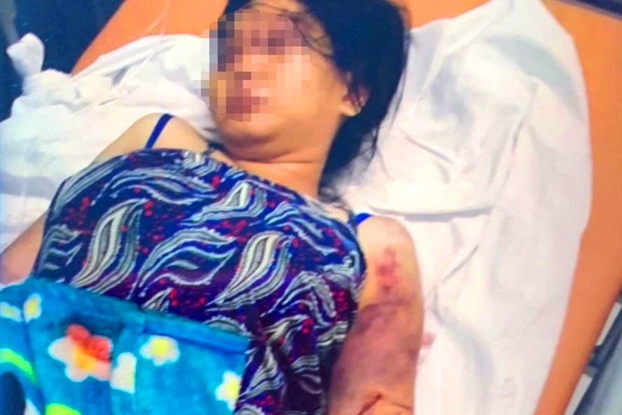 Vụ bà bầu 18 tuổi bị giam, tra tấn đến sẩy thai: Luật sư phân tích yếu tố pháp lý - Ảnh 2