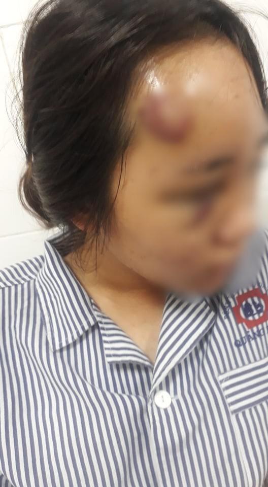 Nữ sinh bị đánh hội đồng ở Quảng Ninh từng đánh nhau với đàn em của nhóm hành hung - Ảnh 1