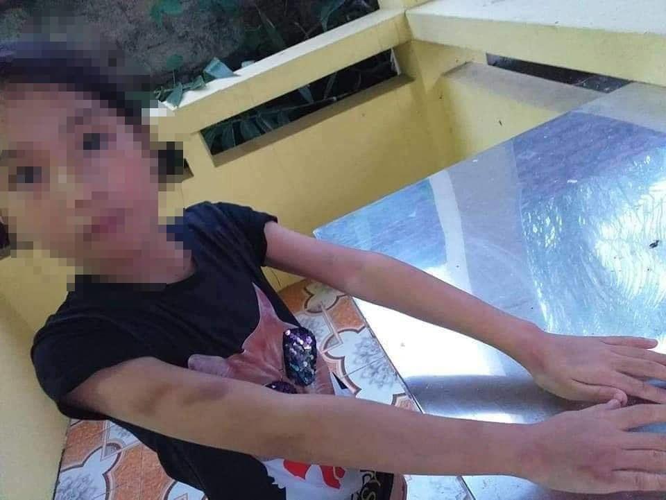 Khẩn trương làm rõ thông tin bé gái bị cô giáo bị bạo hành dã man ở lớp học thêm - Ảnh 1