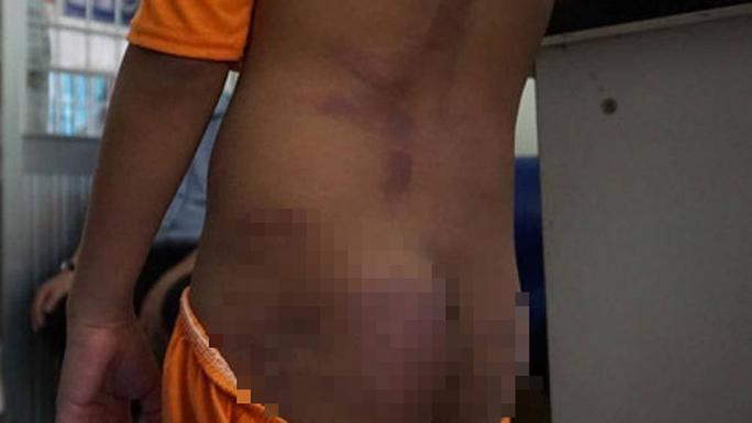 4 trẻ nghi bị bạo hành thâm tím khắp người ở Cà Mau được phát hiện như thế nào? - Ảnh 1