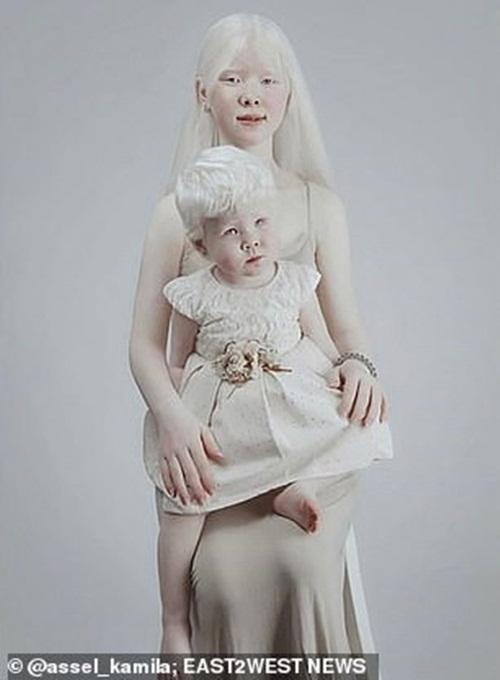 Sửng sốt trước diện mạo khác lạ của hai chị em bạch tạng người Kazakhstan - Ảnh 4