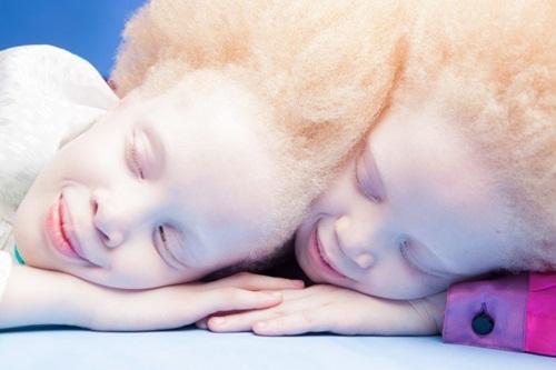 Sửng sốt trước diện mạo khác lạ của hai chị em bạch tạng người Kazakhstan - Ảnh 5