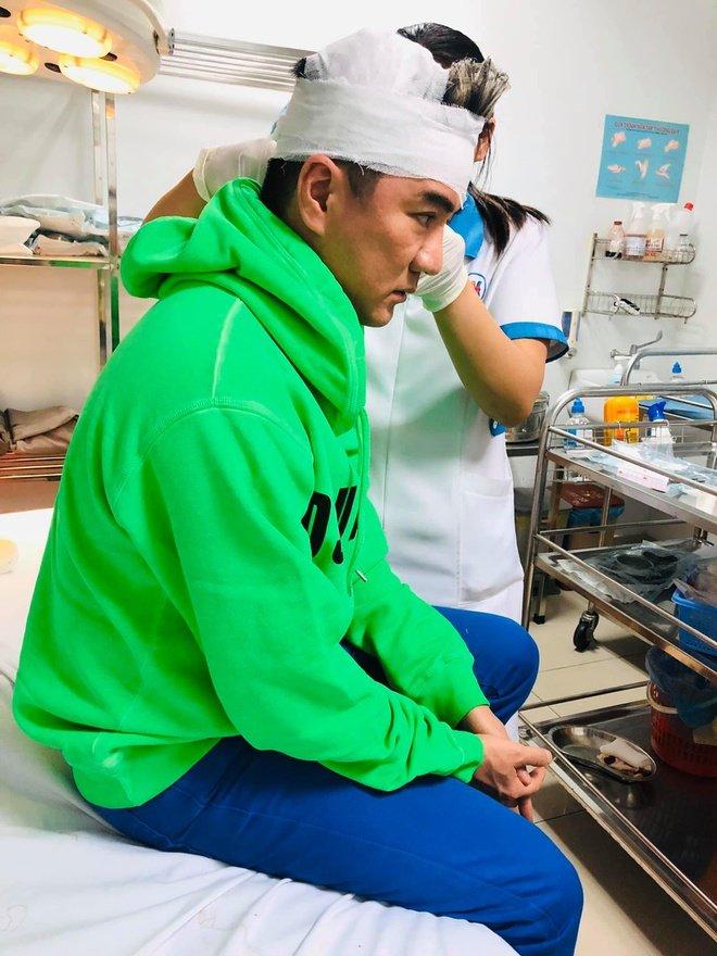 Đàm Vĩnh Hưng bị tai nạn rách đầu: Bỏ hát để vào hậu trường băng bó sẽ khiến khán giả lo lắng hơn - Ảnh 1