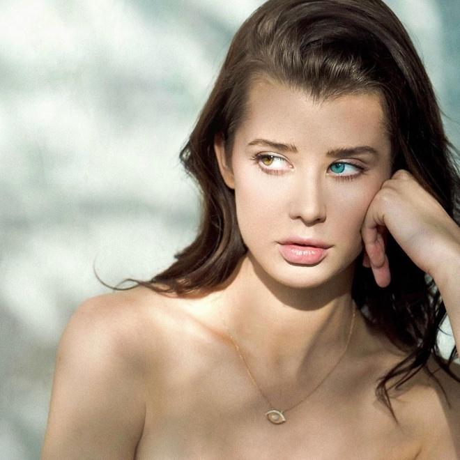 """Vẻ đẹp """"độc nhất vô nhị"""" của cô bé mang hai tính trạng di truyền cực hiếm gặp trên thế giới - Ảnh 3"""