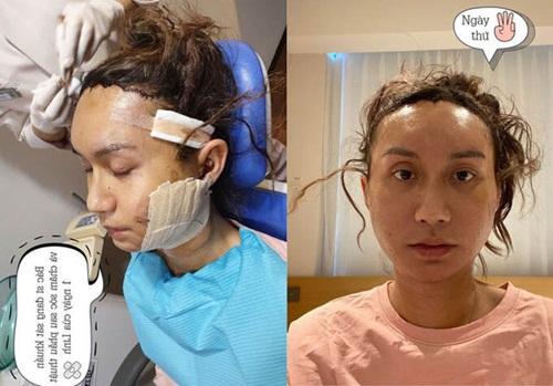 Loạt sao Việt gây chấn động khi công khai quá trình phẫu thuật thẩm mỹ: Lynk Lee gây sốc nhưng vẫn thua một người này - Ảnh 1