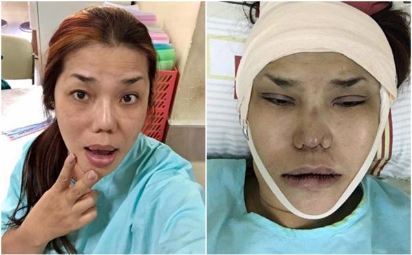 Loạt sao Việt gây chấn động khi công khai quá trình phẫu thuật thẩm mỹ: Lynk Lee gây sốc nhưng vẫn thua một người này - Ảnh 11
