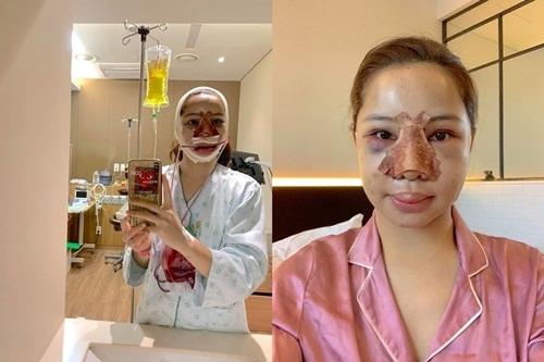 Loạt sao Việt gây chấn động khi công khai quá trình phẫu thuật thẩm mỹ: Lynk Lee gây sốc nhưng vẫn thua một người này - Ảnh 4