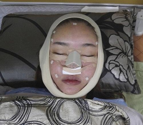 Loạt sao Việt gây chấn động khi công khai quá trình phẫu thuật thẩm mỹ: Lynk Lee gây sốc nhưng vẫn thua một người này - Ảnh 9