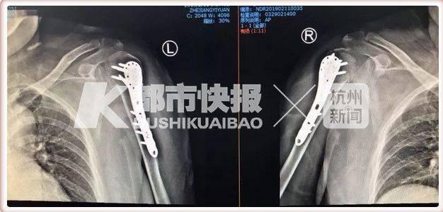 Nam thanh niên bất ngờ bị gãy khuỷu tay khi bế bạn gái 70 kg - Ảnh 2