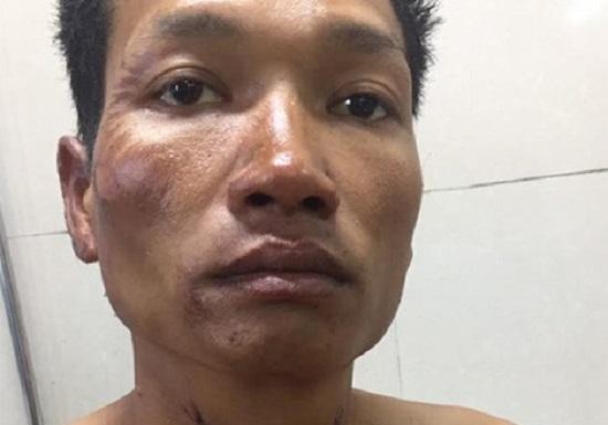 TP.HCM: Nghi án chồng dùng dao đâm vợ tử vong trước Ga Sài Gòn rồi bỏ trốn - Ảnh 2