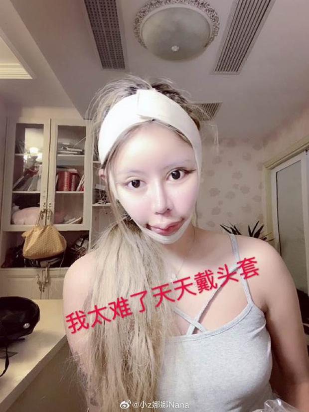 Sốc nặng vì nhan sắc của cô gái cắn răng chịu đau phẫu thuật thẩm mỹ 100 lần để giống búp bê - Ảnh 3