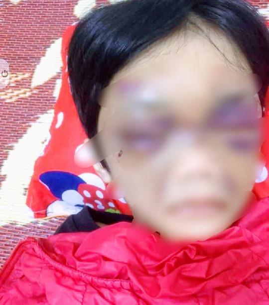Khởi tố người mẹ hành hạ dã man con gái 6 tuổi ở Hải Dương - Ảnh 1