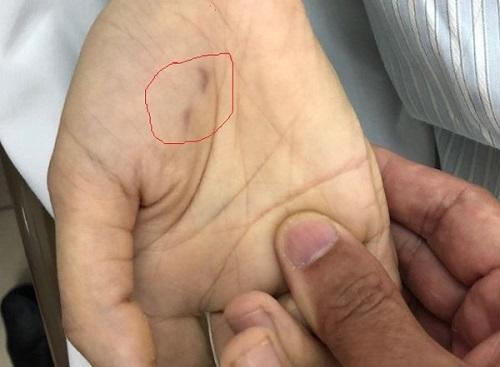 Nữ bác sĩ thú y tử vong vì chó dại cắn vào tay - Ảnh 1