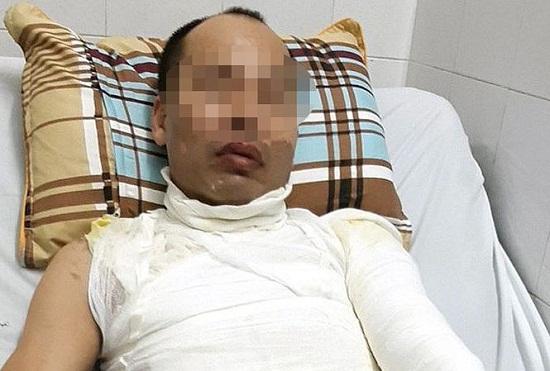Hà Nội: Con gái 9 tuổi gào khóc khi nhìn bố bị tạt axit trên đường - Ảnh 1