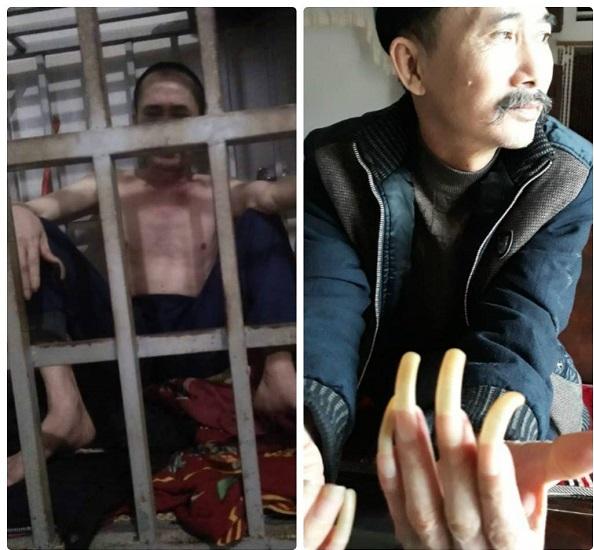 Thực hư chuyện người đàn ông tố bị vợ và con nhốt trong cũi sắt suốt 3 năm - Ảnh 1