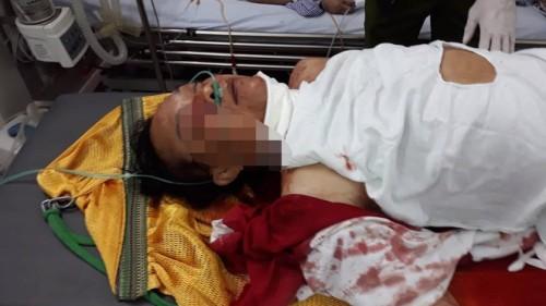 Vụ thầy cúng truy sát cả nhà hàng xóm: Nghi phạm đã tử vong tại bệnh viện - Ảnh 1