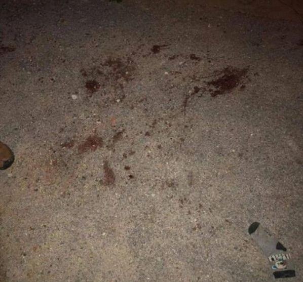 Vụ cháu bé 7 tuổi bị đàn chó cắn tử vong: Chủ vật nuôi có thể bị truy cứu trách nhiệm hình sự - Ảnh 1