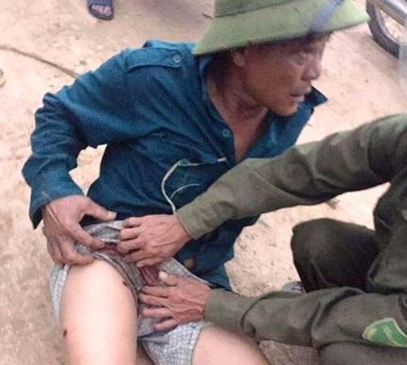 Vụ nhóm đối tượng đi ô tô rút súng bắn trọng thương người dân: Tạm giữ một nghi phạm - Ảnh 1