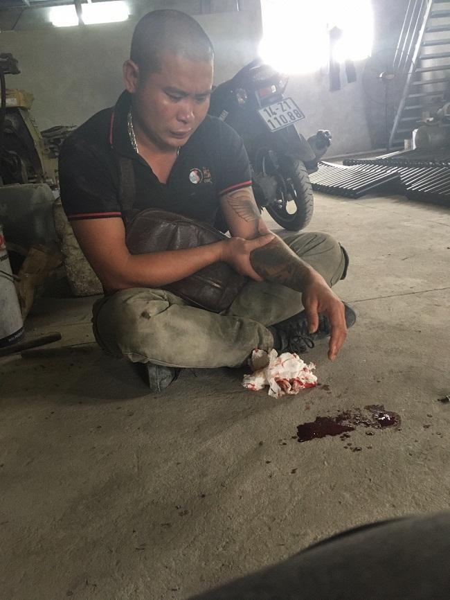 Nhân viên bị con nợ đánh ở Quảng Ninh, Giám đốc công ty đòi nợ thuê nói gì? - Ảnh 1