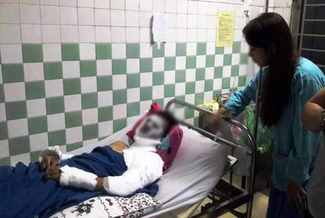 Vụ Việt kiều Canada bị tạt axit, cắt gân chân: Hé lộ đặc điểm nhận dạng hung thủ - Ảnh 1