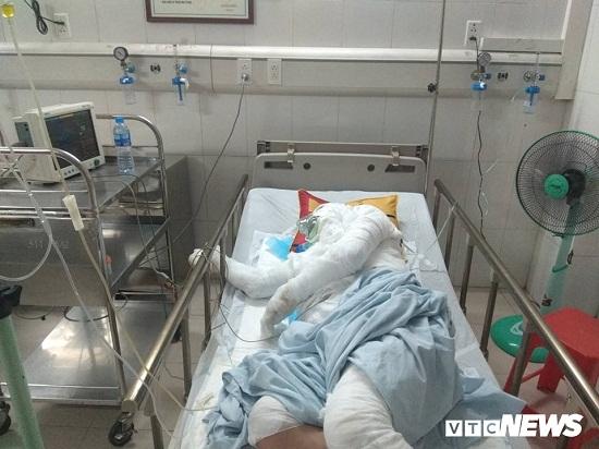 Bị bén lửa toàn thân sau tai nạn, cụ ông thương binh vẫn cố cứu con gái 6 tuổi - Ảnh 1