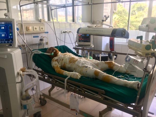 Vụ phóng hỏa đốt nhà người tình vì ghen ở Sơn La: Nghi phạm đã tử vong - Ảnh 1