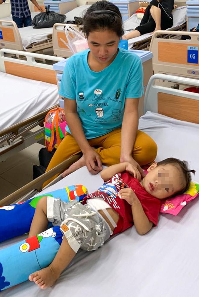 Tin tức đời sống mới nhất ngày 18/9/2019: Cắt khối u gần nửa kg cho bé trai 2 tuổi - Ảnh 1