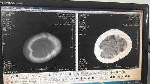 Đập đầu xuống nền đất cứng, bé trai 8 tháng tuổi lún sọ não  - Ảnh 1