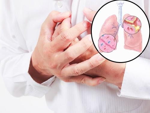 Những dấu hiệu nhận biết ung thư phổi thường bị bỏ qua - Ảnh 2