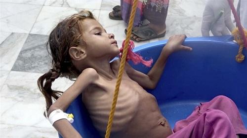 Người Yemen đứng trên bờ vực trải qua nạn đói kinh hoàng nhất lịch sử - Ảnh 1