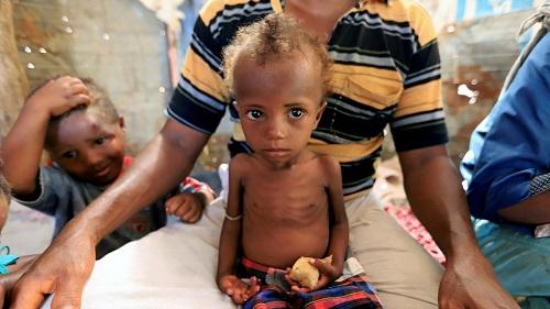 113 triệu người trên toàn thế giới đương đầu với nạn đói  - Ảnh 1
