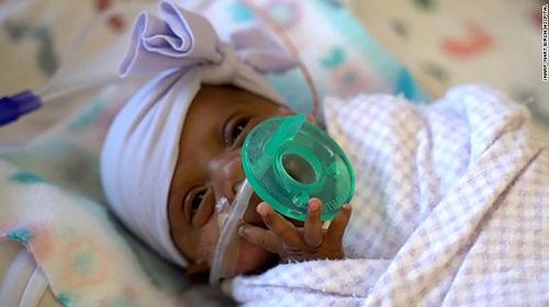 Em bé sơ sinh nhỏ nhất thế giới, nặng hơn 200 gram vẫn sống sót kỳ diệu - Ảnh 1