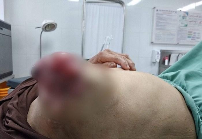 Người phụ nữ bị vỡ, loét khối u ngực vì tự ý đắp thuốc nam - Ảnh 1