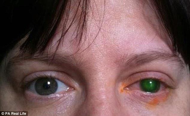 Người phụ nữ bị mù một bên mắt vì không tháo kính áp tròng khi bơi - Ảnh 1