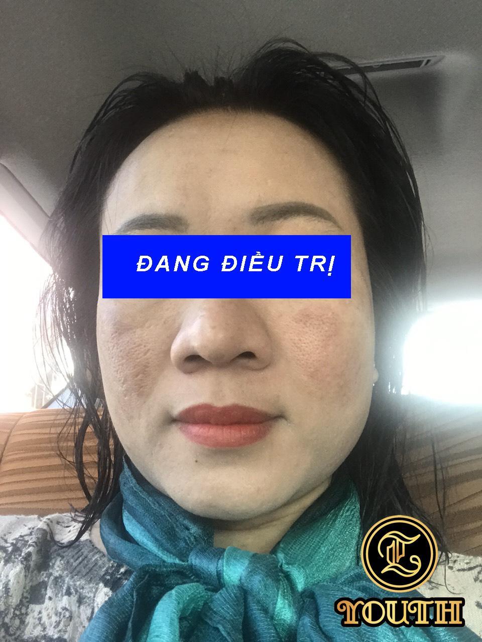 Giám đốc Lê Phạm phục hồi mạnh mẽ sau biến chứng của điều trị da không đúng cách - Ảnh 3