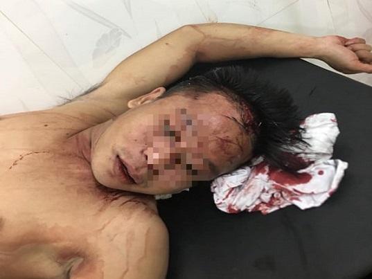 Thanh Hoá: VKSND huyện Hậu Lộc có bỏ lọt tội phạm? - Ảnh 1