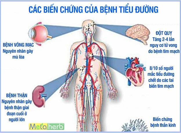 Glue Metaherb - Giải pháp giúp người bệnh tiểu đường phòng ngừa biến chứng - Ảnh 2