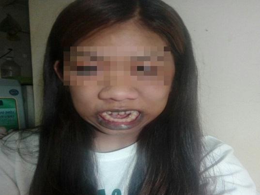 """Cô gái """"người khỉ"""" 22 năm há miệng vì 10 căn bệnh """"quái gở"""" - Ảnh 2"""