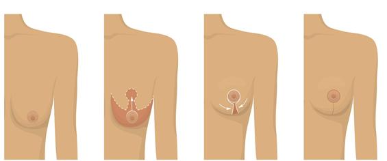 Các cấp độ và phương pháp treo ngực sa trễ - Ảnh 1
