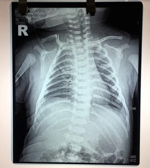 Yên Bái: Cần làm rõ nguyên nhân cháu bé vừa mới sinh đã bị gãy xương đòn - Ảnh 3