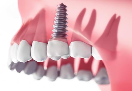 Cấy ghép răng Implant – Giải pháp tối ưu cho người mất răng - Ảnh 2