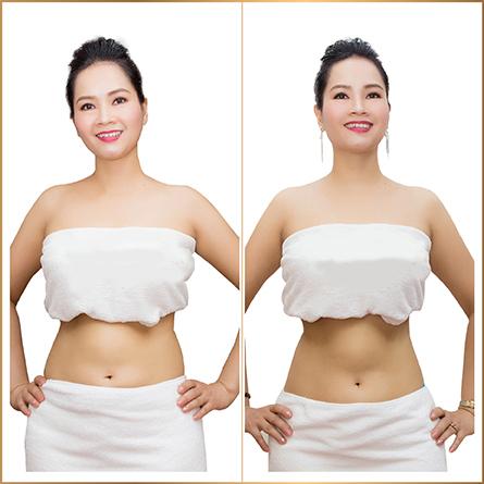 Thẩm mỹ viện quốc tế Bắc Mỹ điều trị giảm béo một lần duy nhất an toàn hiệu quả uy tín tại Thanh Hoá - Ảnh 4
