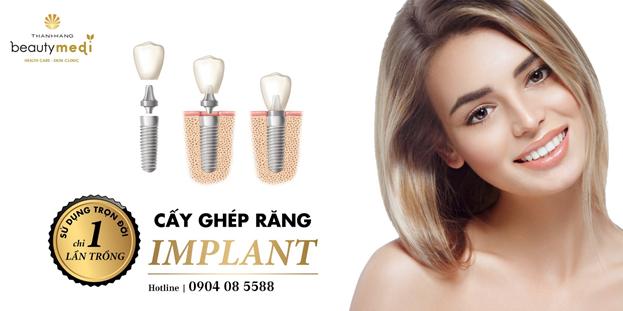 Trồng răng implant sai kỹ thuật – Những biến chứng khôn lường - Ảnh 1