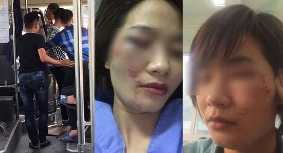 Hà Nội: Nữ nhân viên phụ xe buýt bị 4 thanh niên hành hung đúng ngày 20/10 - Ảnh 1
