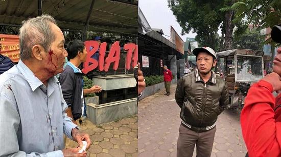 Xác định danh tính gã xe ôm hành hung cụ ông 80 tuổi ở Hà Nội - Ảnh 1