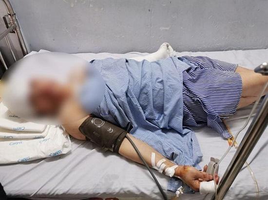 Hà Nội: Nam thanh niên dùng dao chém chủ nhà nghỉ liên tiếp trong đêm - Ảnh 1
