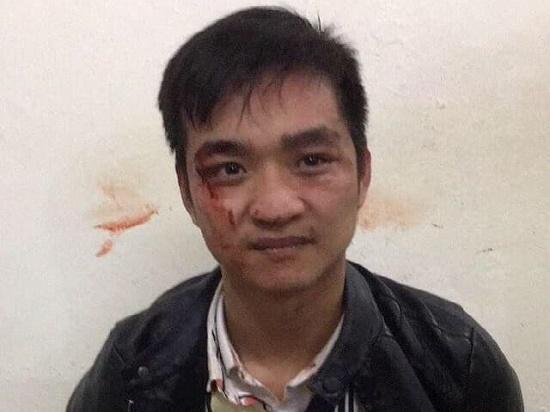 Hé lộ bất ngờ về nhân thân của nam thanh niên táo tợn cướp tiệm vàng ở Hà Nội - Ảnh 1