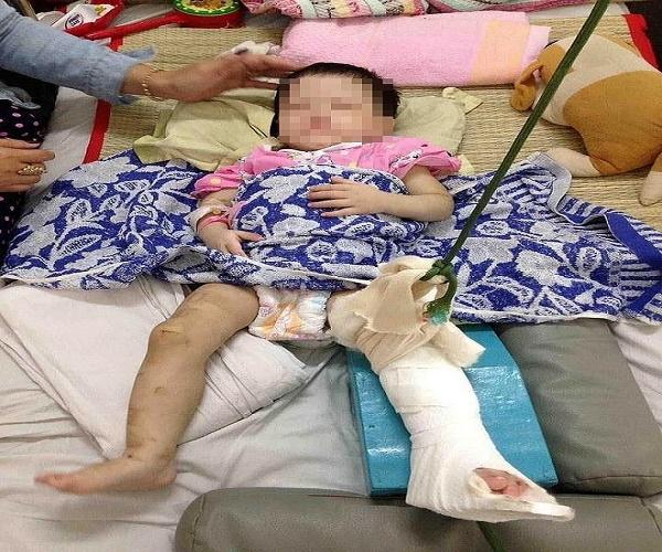 Khởi tố mẹ nuôi đánh gãy chân bé gái một tuổi vì không chịu ăn - Ảnh 1