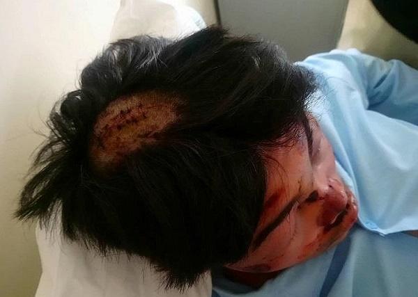 Huế: Điều tra vụ nam sinh lớp 11 bị bạn dùng dao chém trọng thương - Ảnh 1